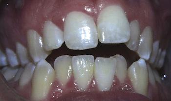 Anterior Openbite Before