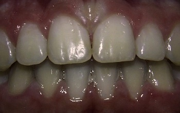 Buck Teeth After